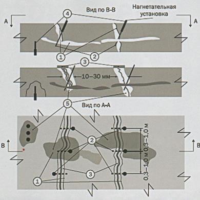 Схема инъекционного лечения